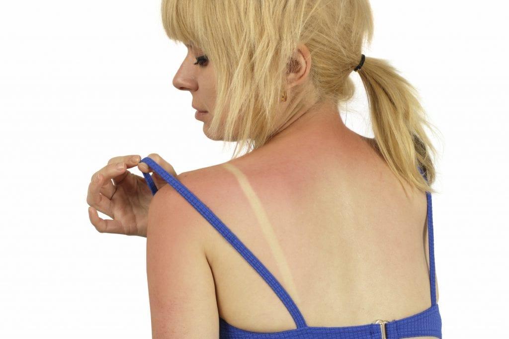 Sun Burn - iStock_000007429119_Medium