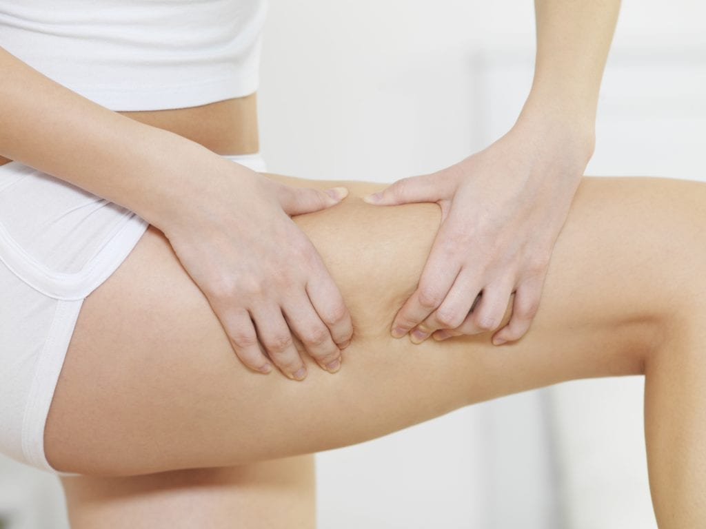 Cellulite On Legs - iStock_000015168800_Medium