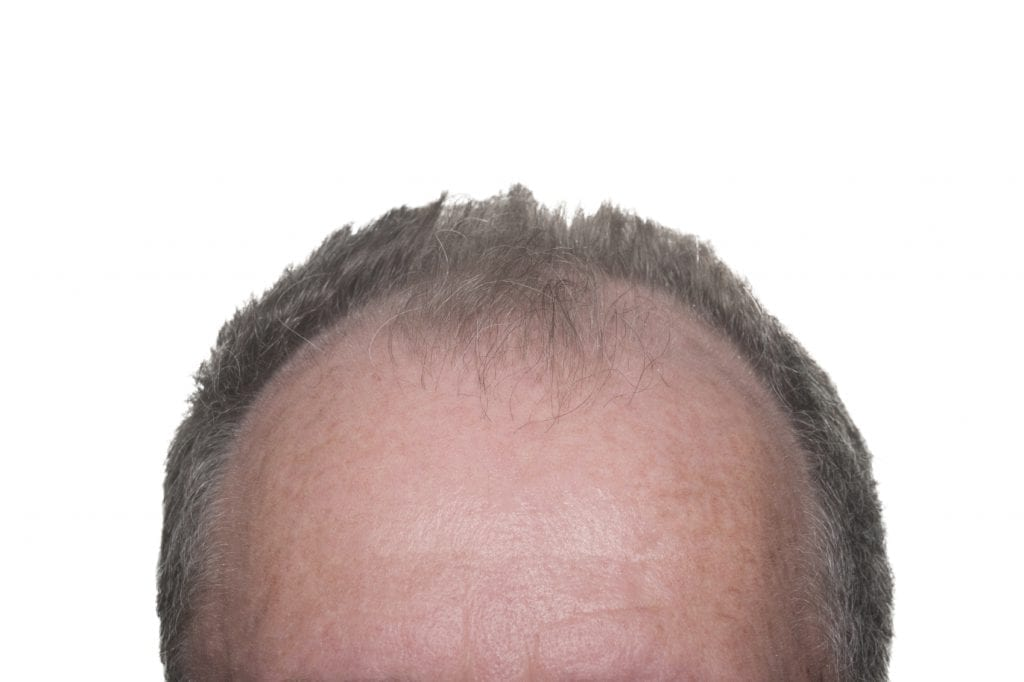 Male Pattern Baldness - iStock_000015895375_Medium