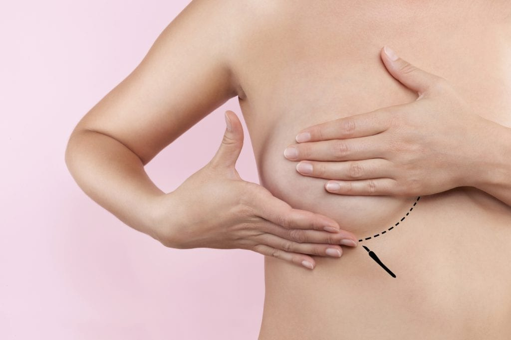 Breast augmentation. Plastic surgery and Aesthetic medicine. Beautiful woman gently touching her breast with marked dotted line ready for surgery. Breast augmentation.