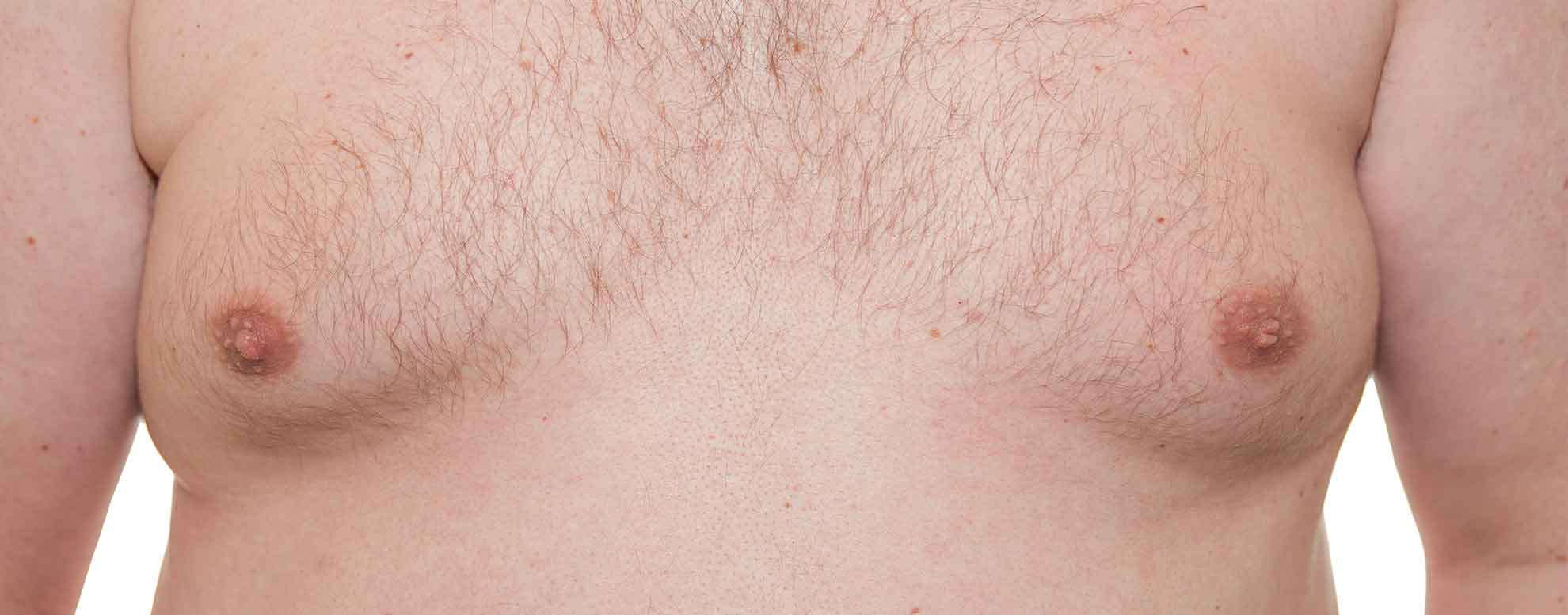 close up of a man's chest with gynecomastia