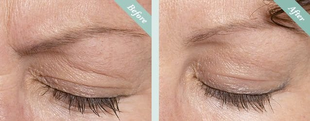 Botox Before & After 3