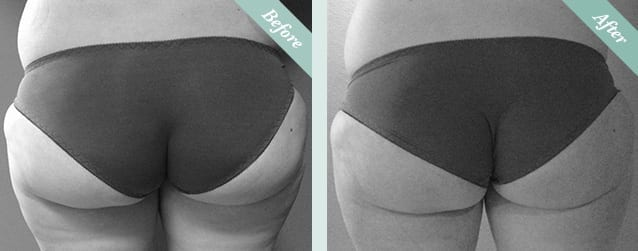 Fat Freezing (Cristal Cryolipolysis) Before & After 3