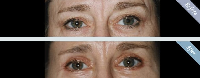 Eyelid Surgery (Blepharoplasty) Before & After 1