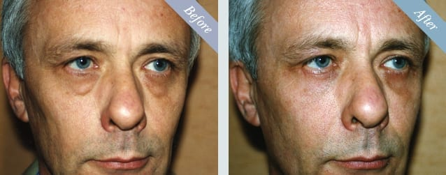 Eyelid Surgery (Blepharoplasty) Before & After 2