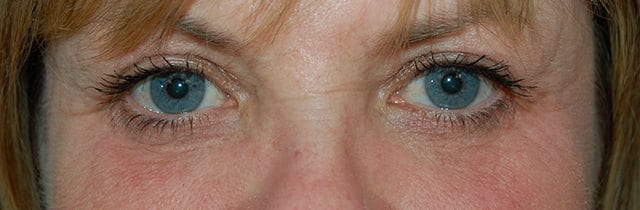 Eyelid Surgery (Blepharoplasty) After