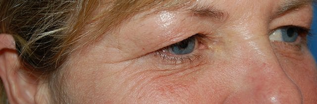 Eyelid Surgery (Blepharoplasty) Before