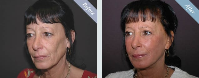 Facelift Before & After 1