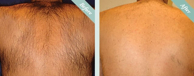 Laser Hair Removal Before & After 3