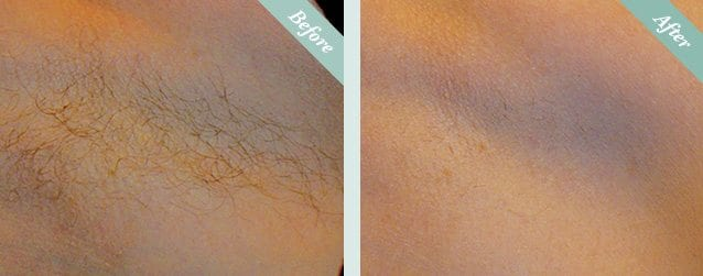 Laser Hair Removal Before & After 1