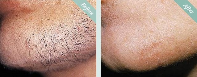 Laser Hair Removal Before & After 2