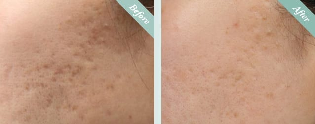 INTRAcel Radiofrequency Microneedling Before & After 2
