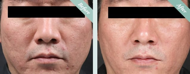 INTRAcel Radiofrequency Microneedling Before & After 1