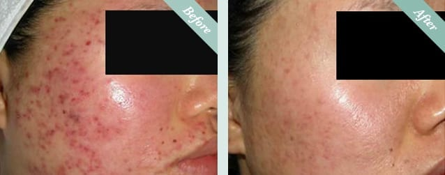 INTRAcel Radiofrequency Microneedling Before & After 3