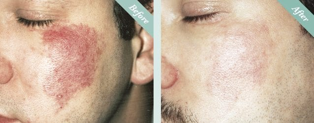 IPL Photo Rejuvenation Before & After 1