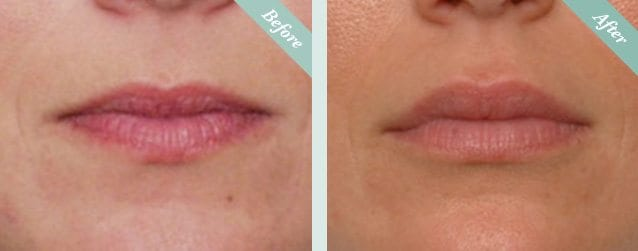 Lip Fillers Before & After 1