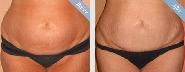 Tummy Tuck Surgery Before & After 1