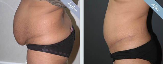 Tummy Tuck Surgery Before & After 2