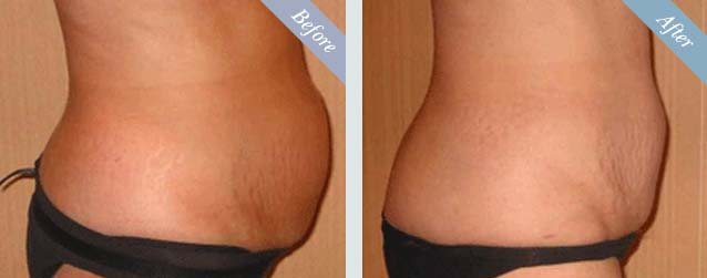 Tummy Tuck Surgery Before & After 3