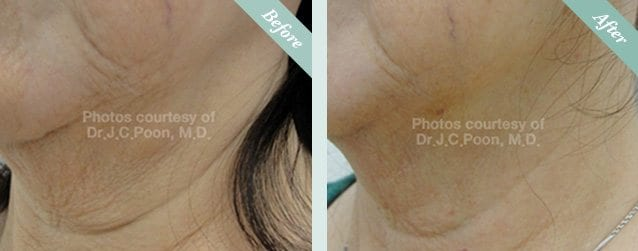 Ultracel HIFU Before & After 1