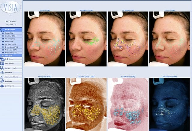 Visia Skin Analysis