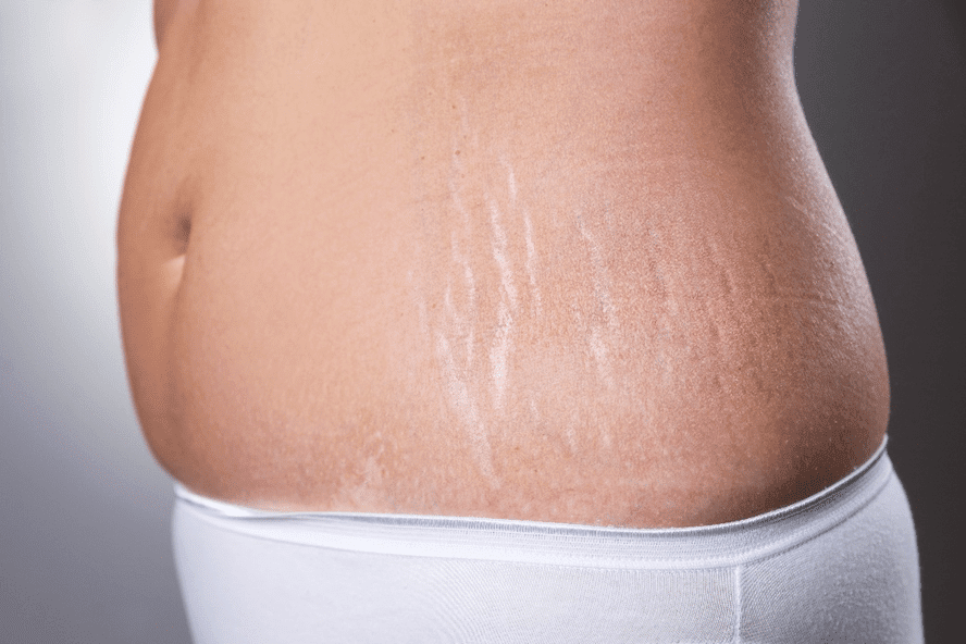 Stretch marks on the side of the stomach