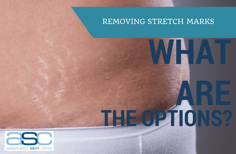 Stretch marks custom image