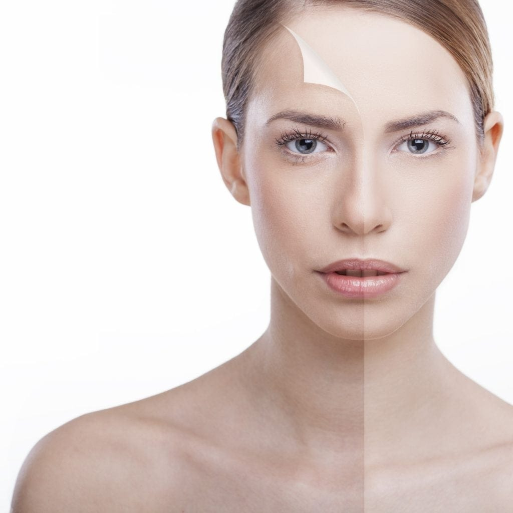 Skin Before and After non-surgical treatment