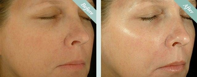 Non-Surgical Skin Peels