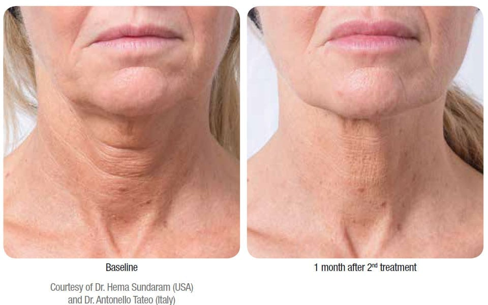 Profhilo before and after treatment