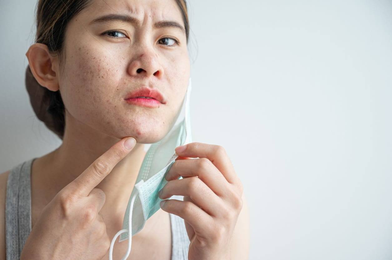 Wearing mask for prolonged periods can damage the skin