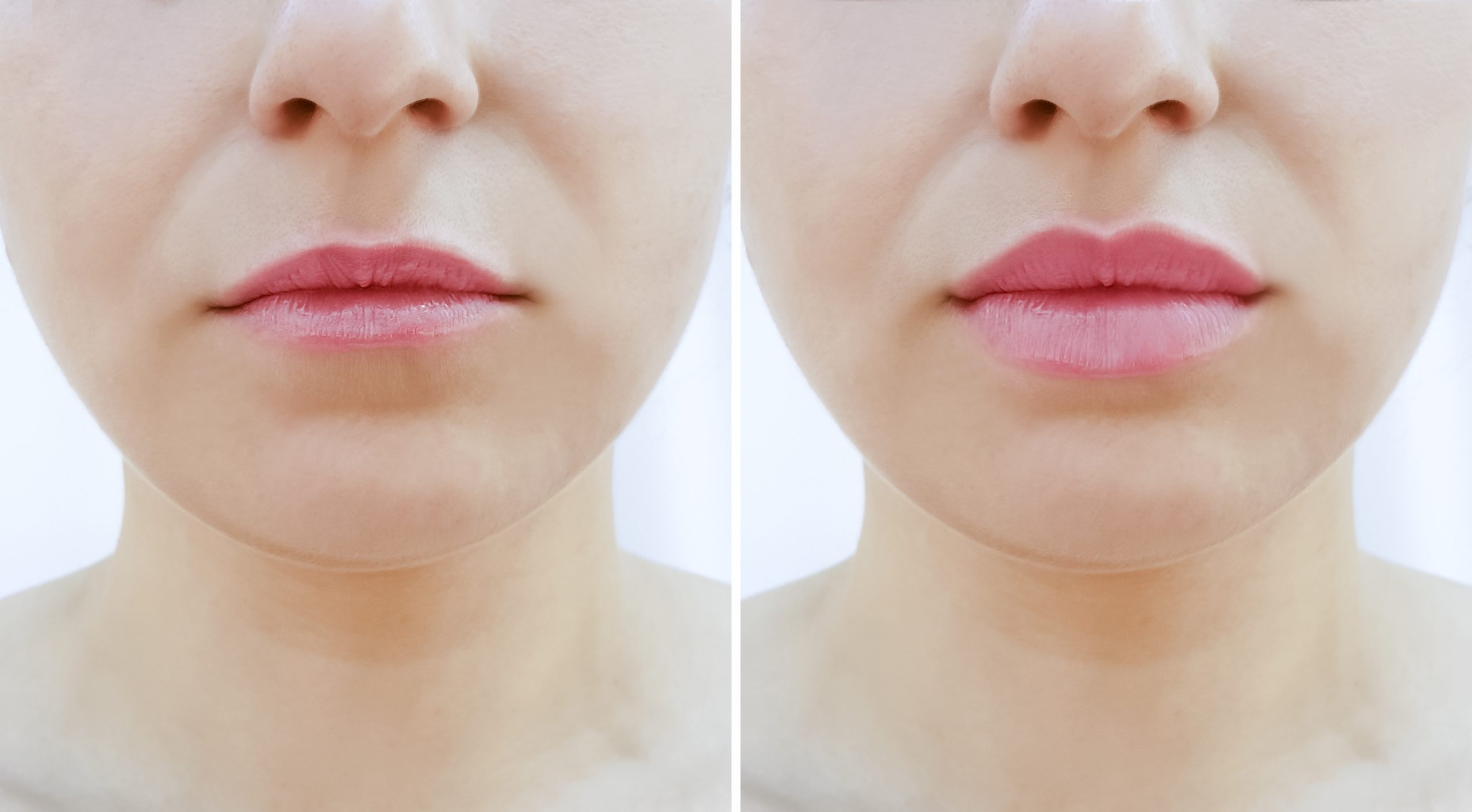 Woman's lips before and after fillers